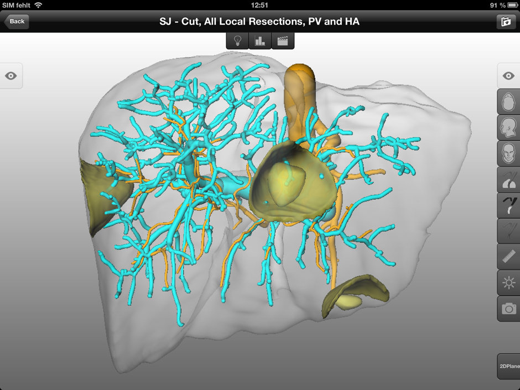 Medische informatie werd voorheen geprint, nu direct in 3D zichtbaar op de iPad.