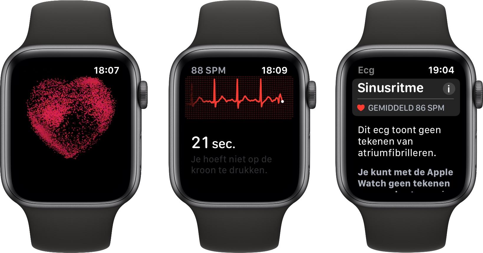Apple Watch Series 4 ECG Nederland 002